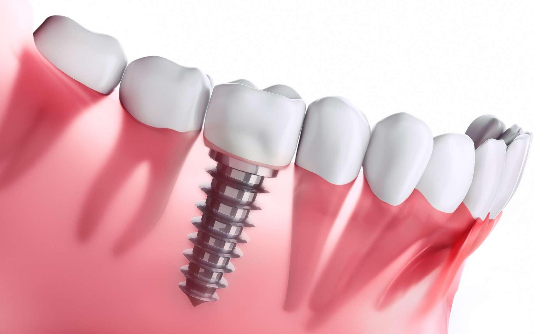 Implant dentaire : à quoi cela peut servir ?
