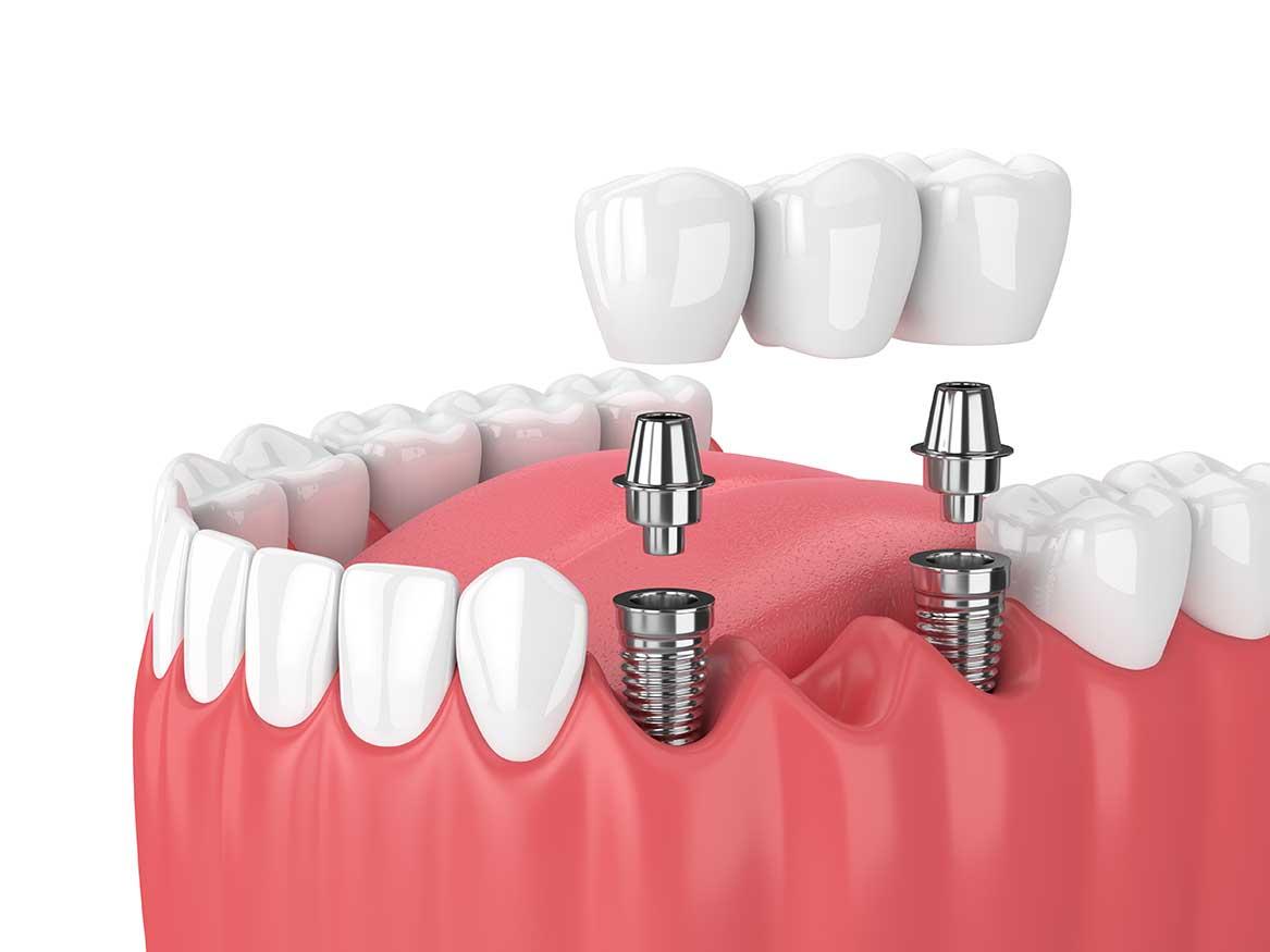 Implant dentaire : pourquoi l'utiliser ?